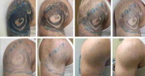 Før og efter billede - NewSkin Laser Clinic