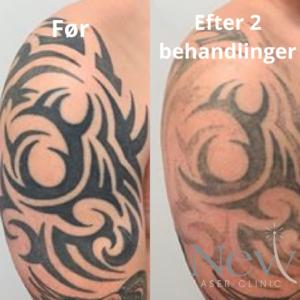 Tatoveringsfjernelse med laser efter 2 behandlinger