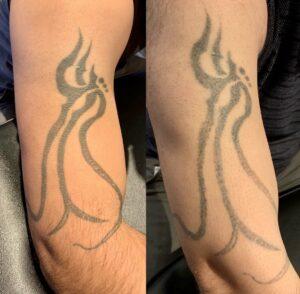 Tatoveringsfjernelse før og efter