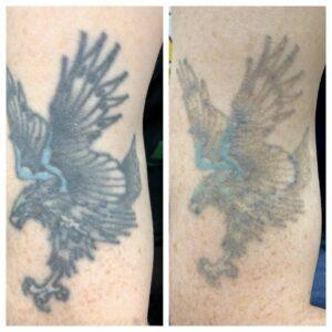 Laserbehandling af tatovering