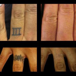 Tatovering på fingerne
