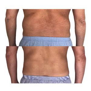 Sidehåndtag på mand, flot resultat med fedtfrysning