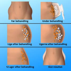 Hvad sker der før og efter fedtfrysning, her ses hele processen