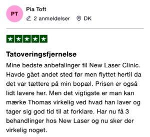 Trustpilot anmeldelse tatoveringsfjernelse